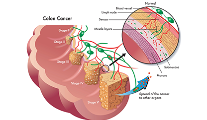 colon cancer illustration